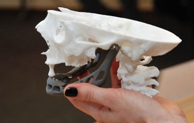 printanje-kostiju